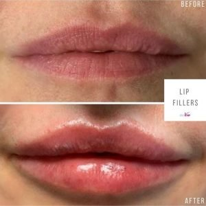 lip-filler-before-after-dr-aimee