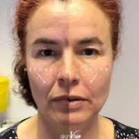Nose to mouth lines - £79 per 1ml
